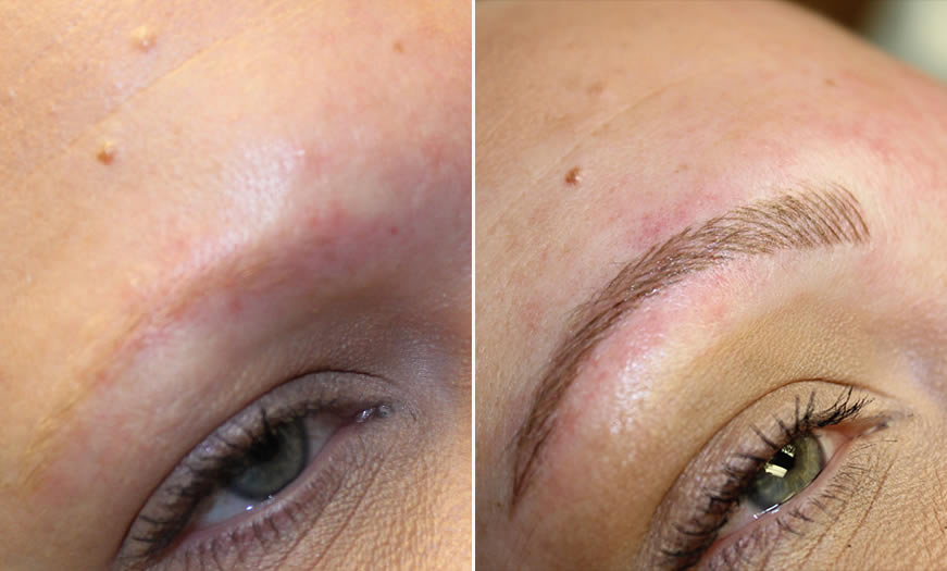 Before & After Microblading Quarter Right View