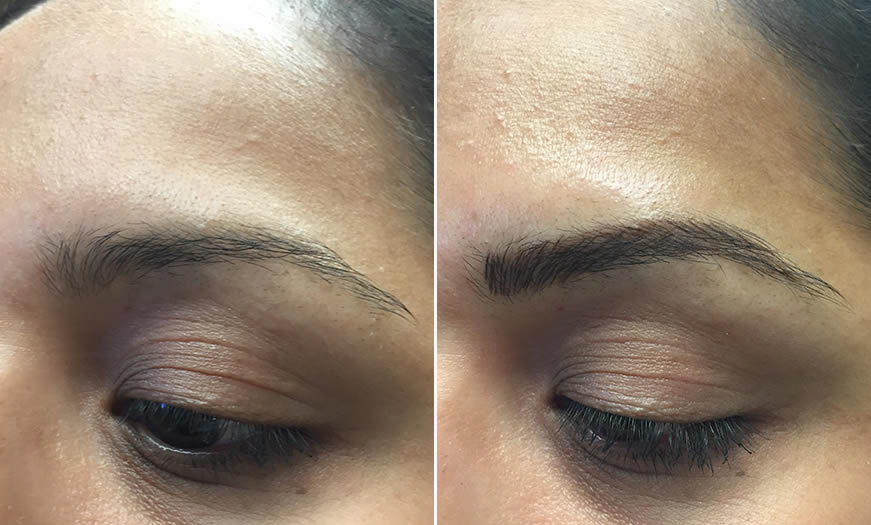 Before & After Microblading Quarter Left View