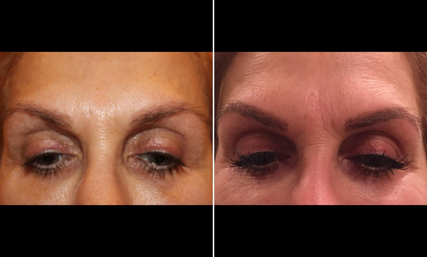 Before & After Microblading Front View