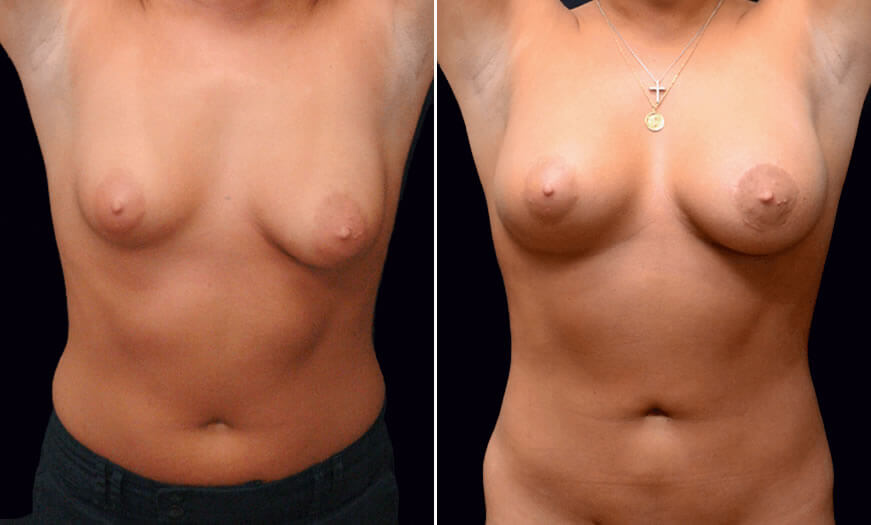 Before & After Combination Procedures Front View 2