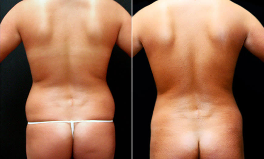 Before & After Combination Procedures back View