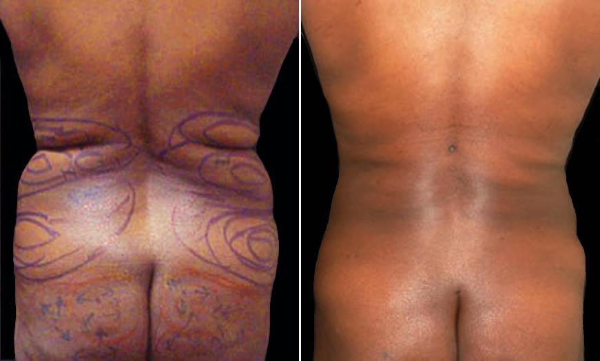 Before & After VASER LipoSelection Back View