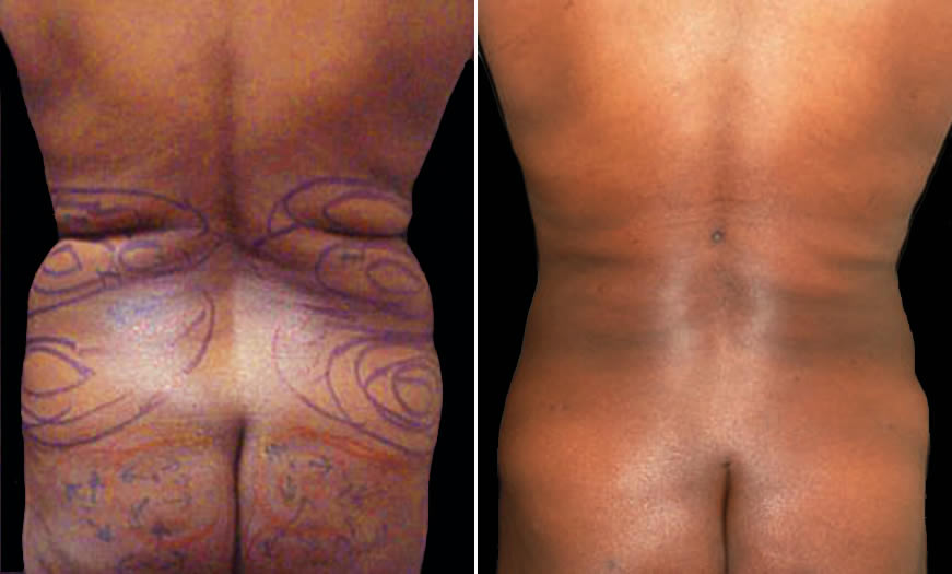 Before & After Fat Grafting Back View
