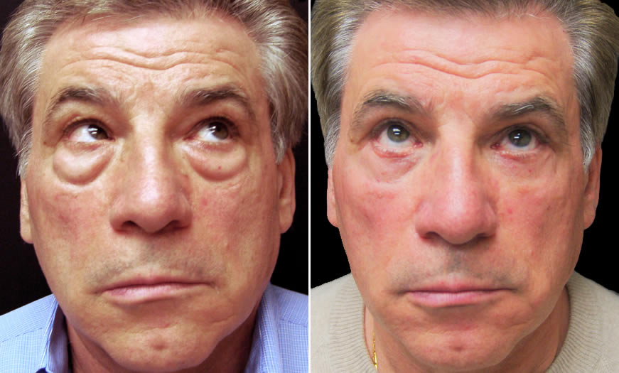 Before & After Blepharoplasty Front View 2