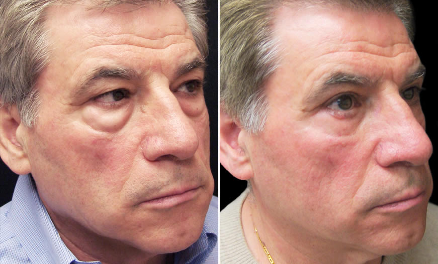 Before & After Blepharoplasty Quarter Right View