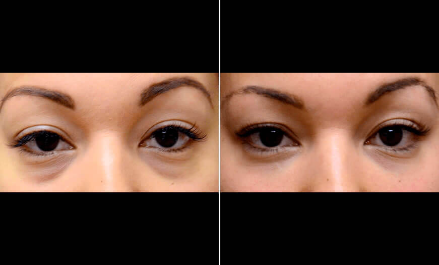Before & After Cosmetic Fillers Front View 1