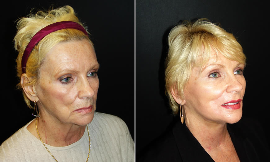 Facelift Before & After quarter Right