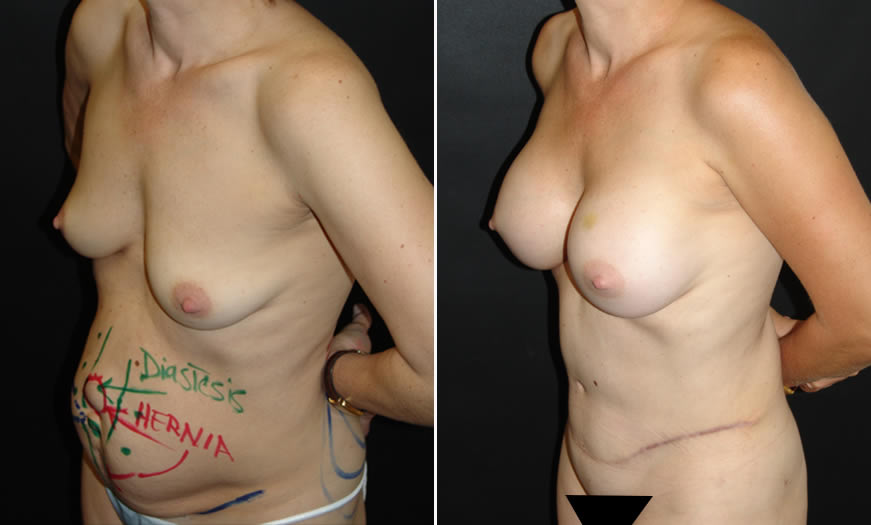 Core Abdominoplasty Before & After Side View Left