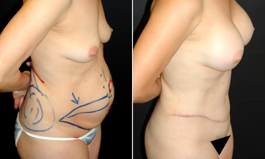 Tummy Tuck Before & After Side Right View