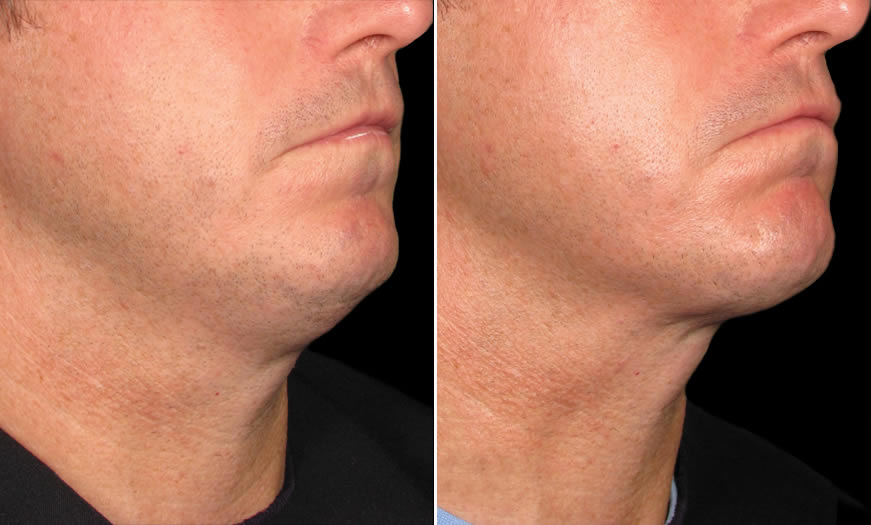 Before & After Ultherapy Side right View