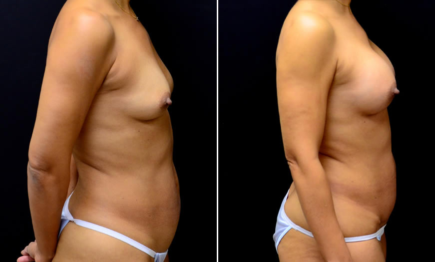 Breast Augmentation Side View Right