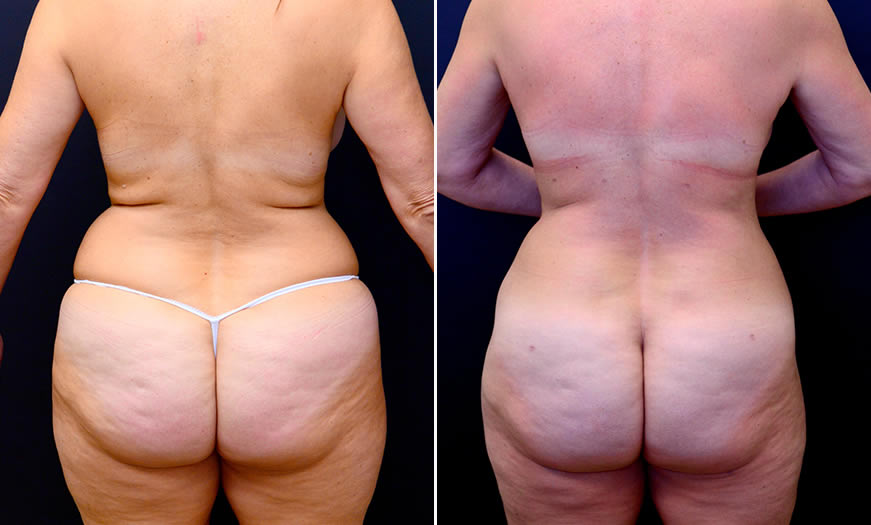Before & After Liposuction Back View