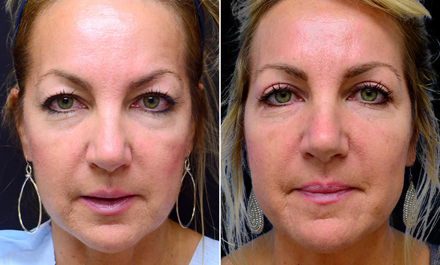 Before & After Blepharoplasty Front View