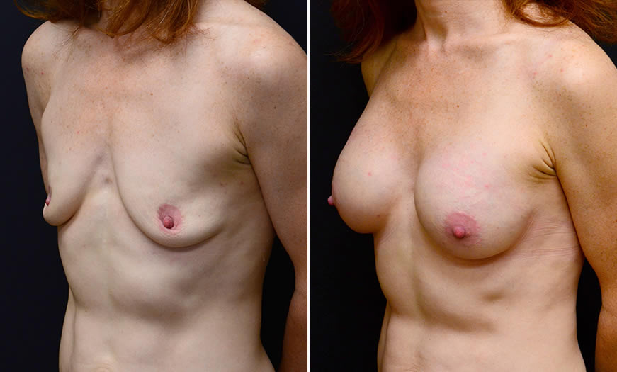 Before & After Breast Augmentation Quarter Left View