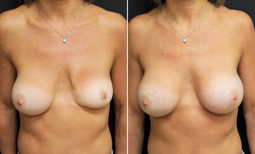 Breast implant sizes and options