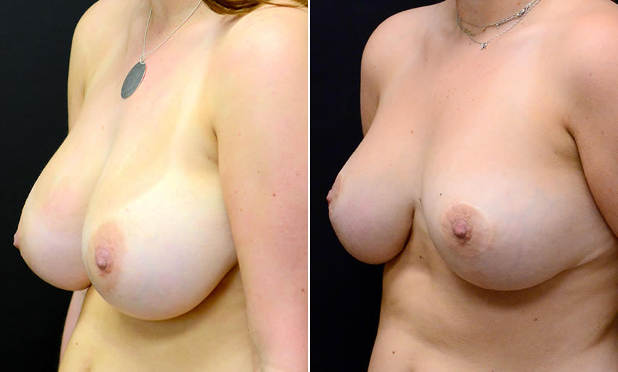Before & After Breast Reduction Quarter Left View