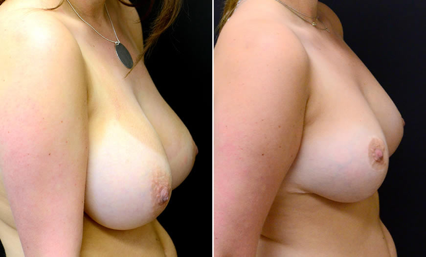 Before & After Breast Reduction Side Right