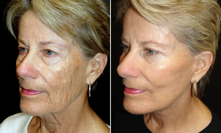 Before & After Face & Neck Lift Quarter Left View