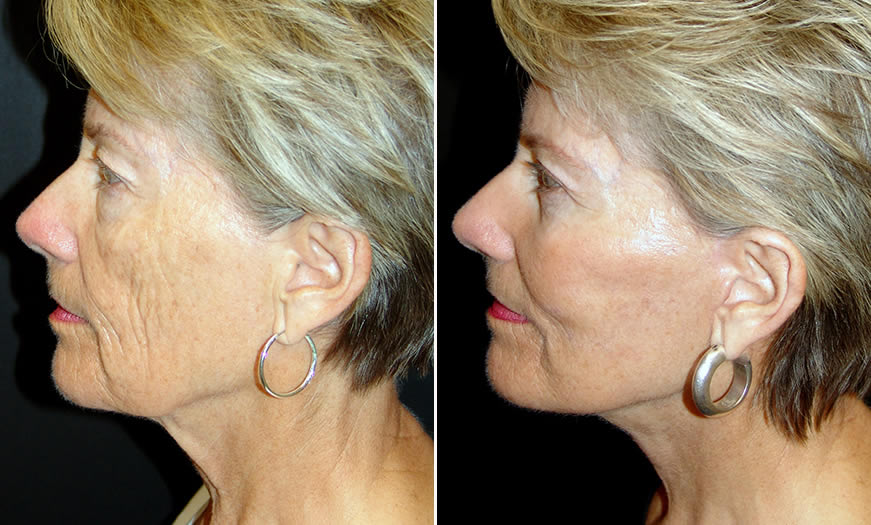 Before & After Face & Neck Lift Side Left View