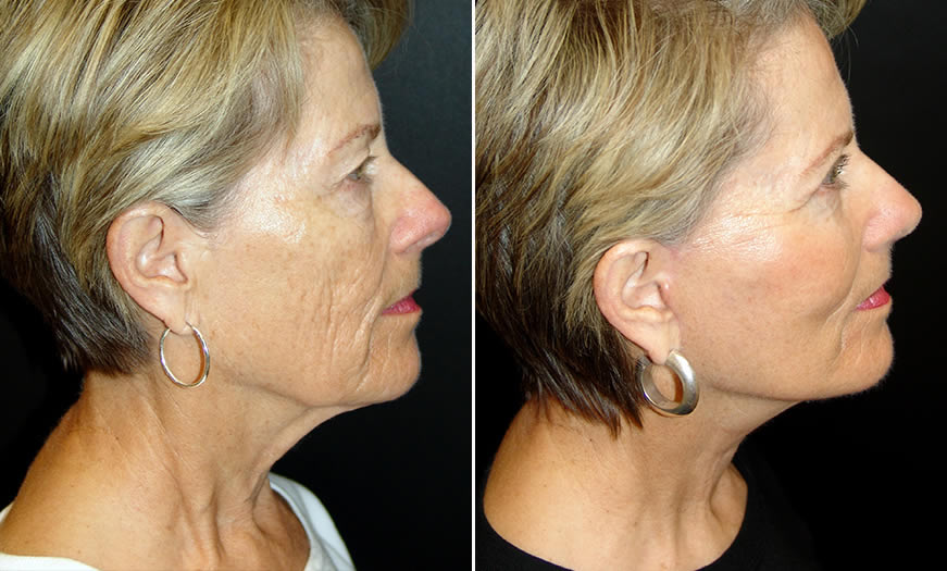 Before & After Face & Neck Lift Side Right View