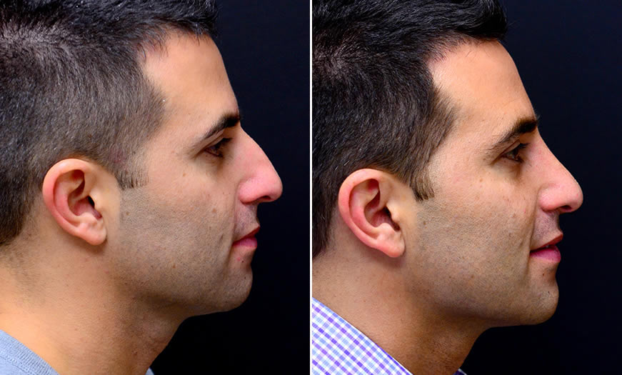 Before & After Rhinoplasty Side Right View