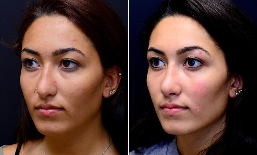 Before & After Rhinoplasty Quarter Left View