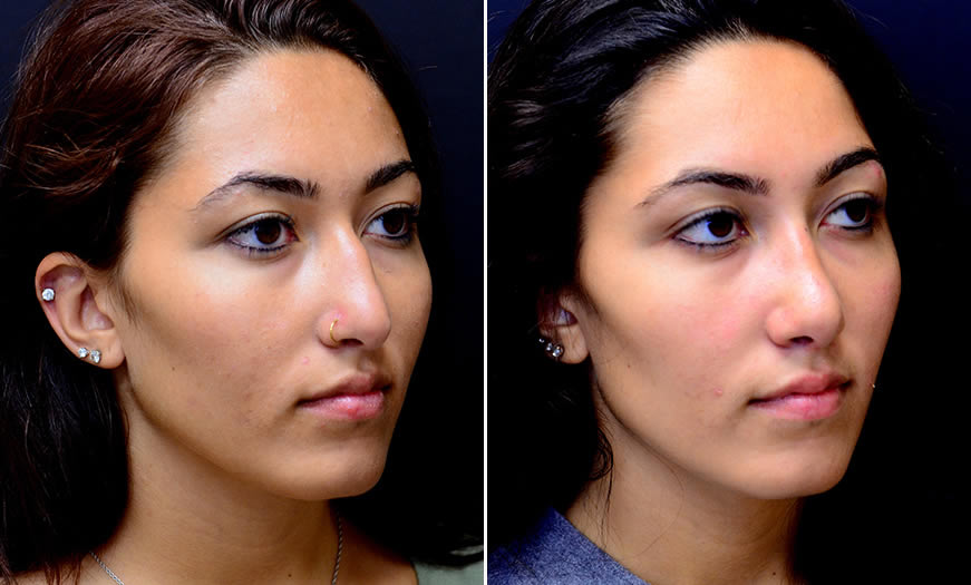 Before & After Rhinoplasty Quarter Right View