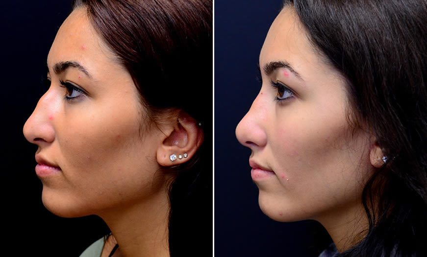 Before & After Rhinoplasty Side Left View