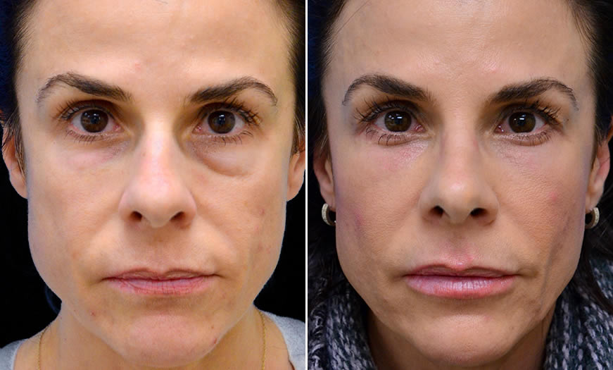 Before & After Rhinoplasty Front View
