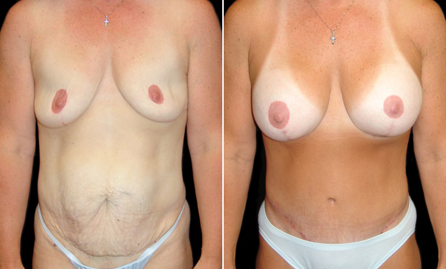 CORE Abdominoplasty In NJ Before & After