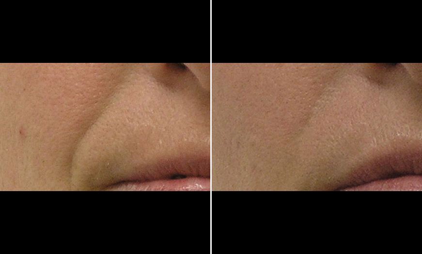 Before And After HydraFacial MD® Treatment