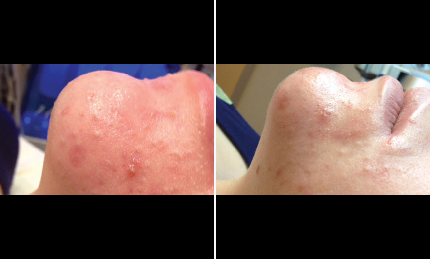 Before & After HydraFacial MD® Treatment