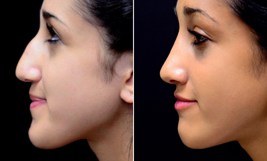 Before And After Rhinoplasty In NJ