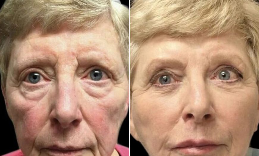 NJ Blepharoplasty Before And After