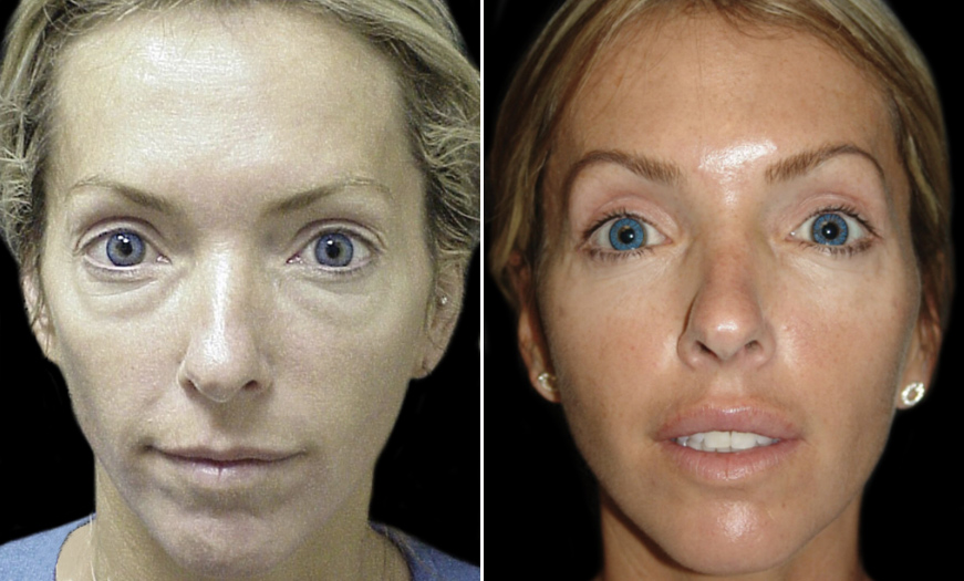 Before And After Blepharoplasty In NJ