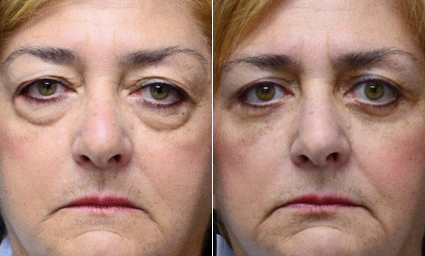 New Jersey Blepharoplasty Before And After