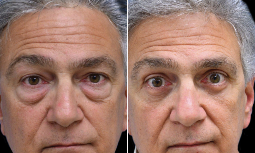 New Jersey Blepharoplasty Before & After