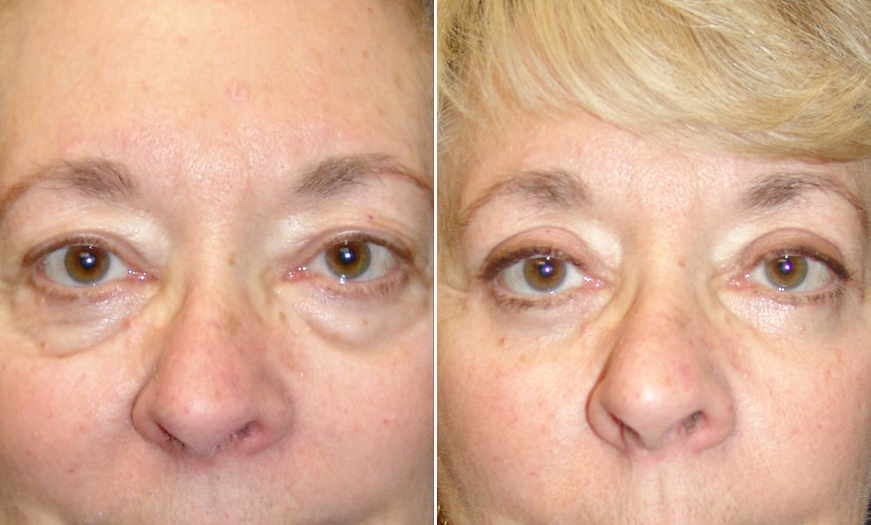 New Jersey Blepharoplasty Results