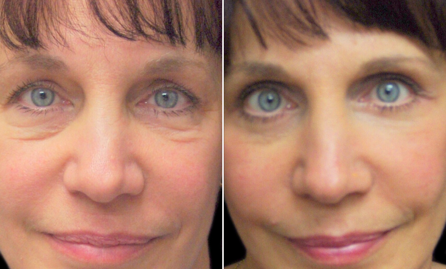 Before And After Blepharoplasty In New Jersey