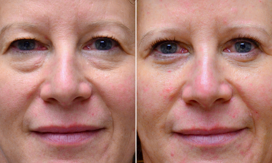Before & After Blepharoplasty In New Jersey
