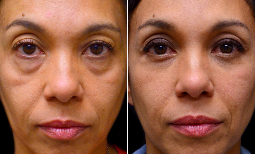 NJ Blepharoplasty Surgery Before And After