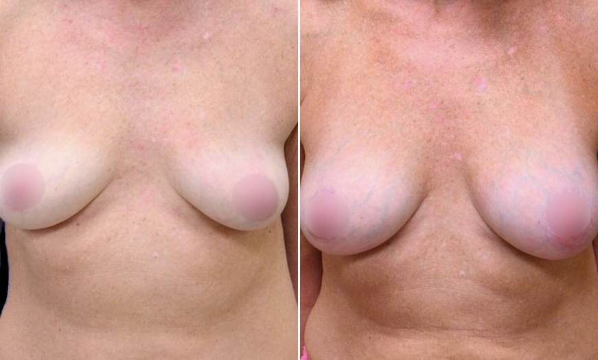 NJ Breast Augmentation Before And After