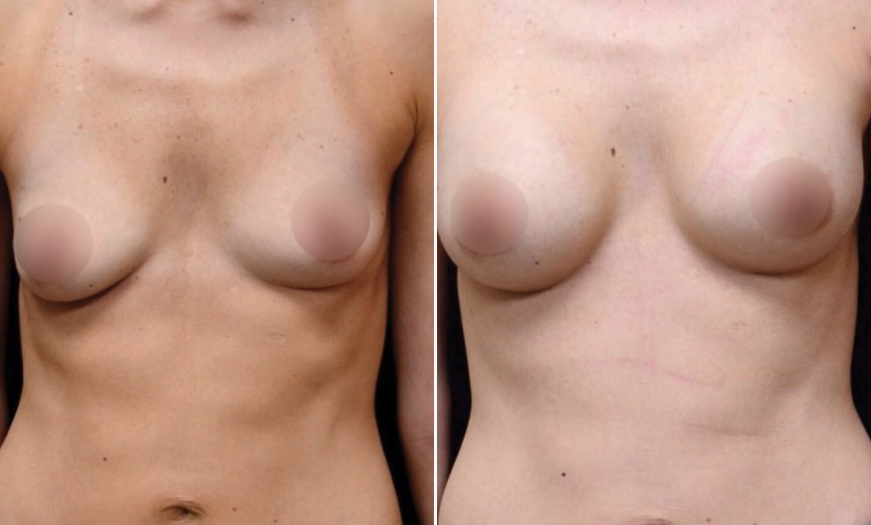 NJ Breast Augmentation Before & After