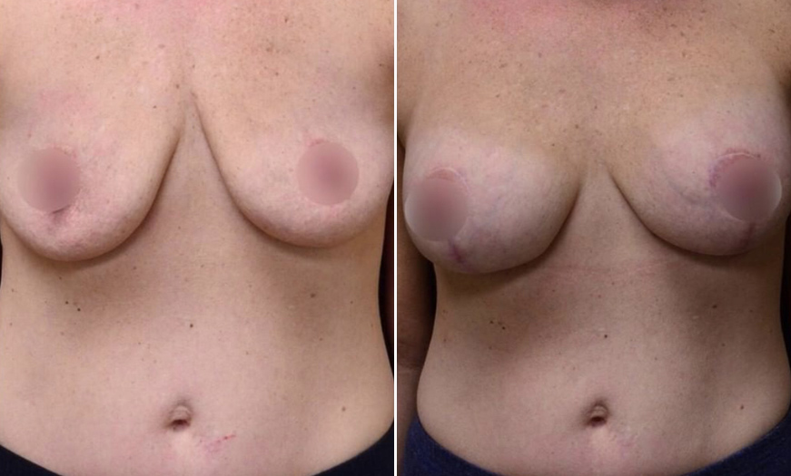 NJ Breast Augmentation Results