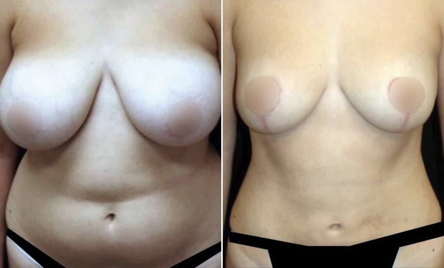 NJ Breast Lift Before And After