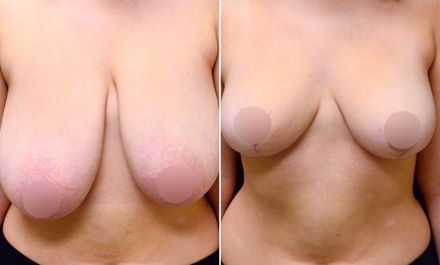 NJ Breast Reduction Before And After