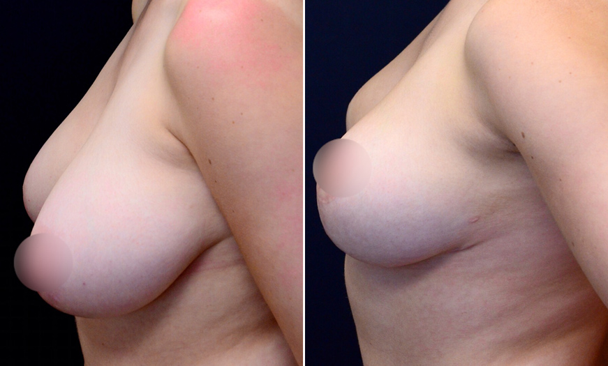 NJ Breast Reduction Before & After