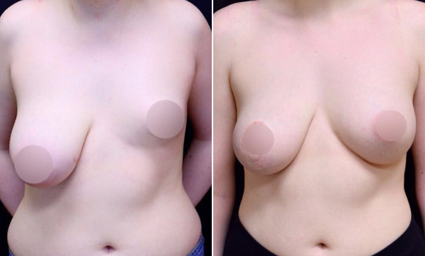 NJ Breast Reduction Results