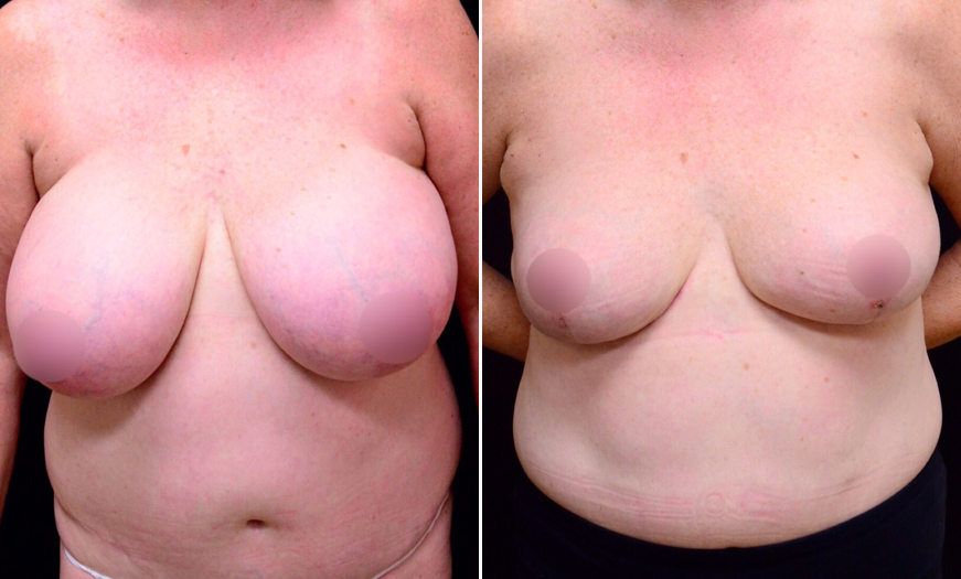 Before And After Breast Reduction In NJ