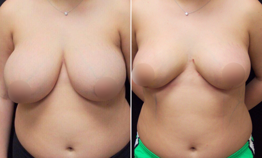 Before & After Breast Reduction In NJ